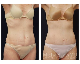 Abdominoplasty - Tummy Tuck after 396013