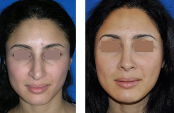 Rhinoplasty before 271486