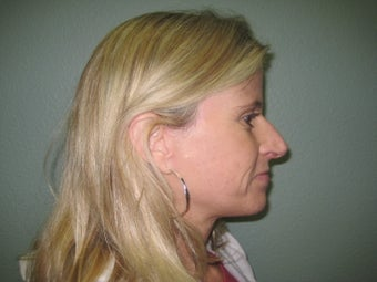 Facelift, Mini Face Lift, Quicklift after 243935