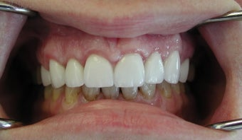 Gum lift (Crown Lengtheing), Root coverage with soft tissue Graft,  after 565879