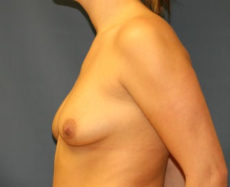 Breast Augmentation 568967