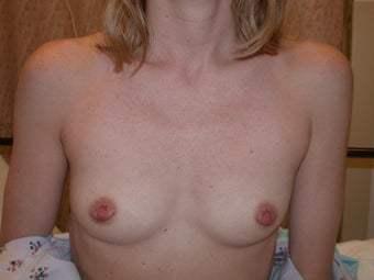 breast augmentation before 409249