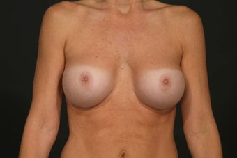 Breast Augmentation after 291229