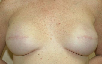 Breast Reconstruction 526305