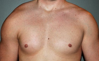 Pectoral Implants after 536031