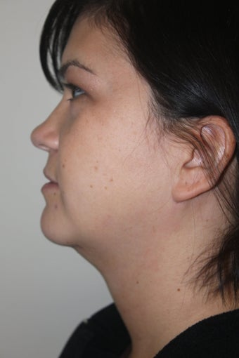 SmartLipo to the neck before 526873