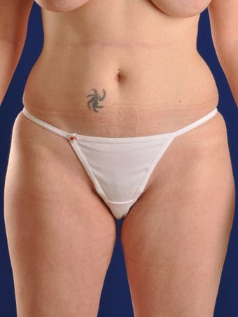 Vaser Hi Def Liposuction of abdomen, thighs, flanks and back with fat injections to buttocks before 422671