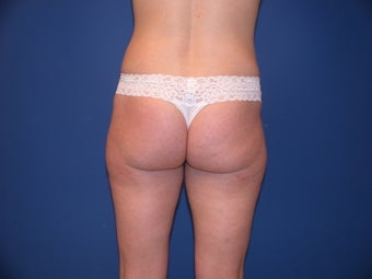 Liposculpture of Thighs, Hips and Buttocks before 99793