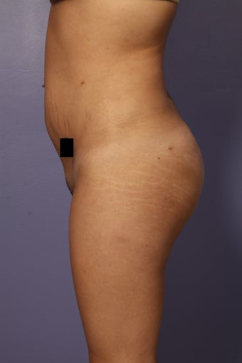 Buttock augmentation after 585019