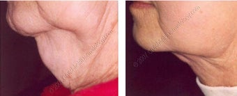 Lipodissolve before and after on chin before 9741