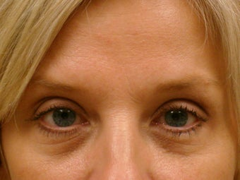 Botox Cosmetic after 375186