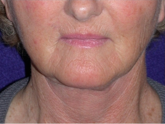 Necklift after 208439