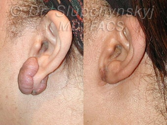 Keloid Removal before 613877