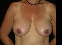 Breast Lift before 633846