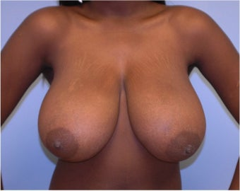 Breast Reduction before 258246