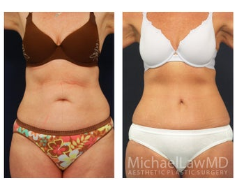 Abdominoplasty - Tummy Tuck before 396080