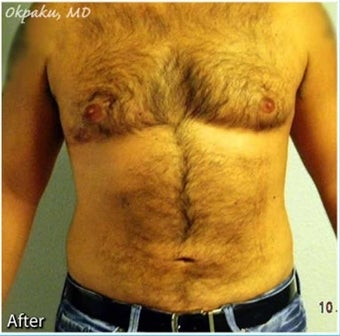 Male Liposuction of Abdomen and flanks after 277008