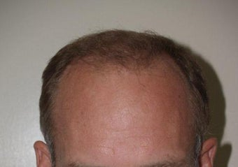 Hair Transplant / 2000 grafts after 222911