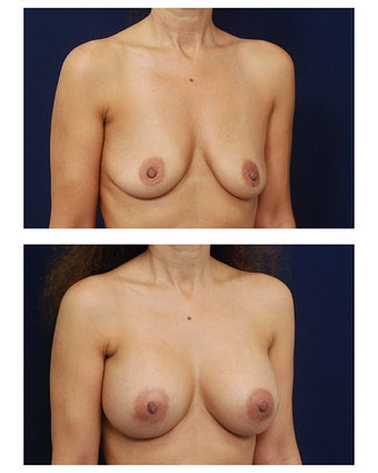 Breast Augmentation after 385517