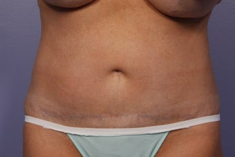 CoolSculpting to Abdomen after 429653