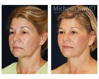 Facial Rejuvenation - Neck Lift after 395329