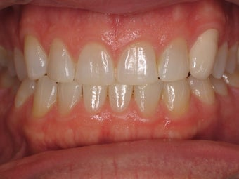 Tooth Whitening before 366619