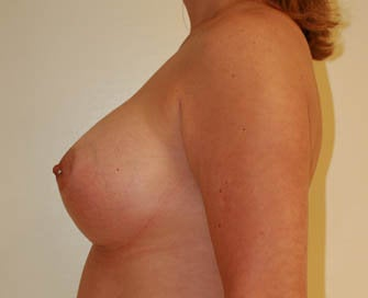 Augmentation Mammaplasty (Breast Implants) after 226493