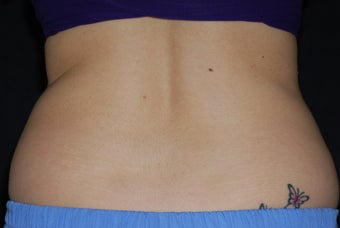 CoolSculpting/flanks before 371333