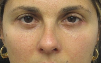 Lower eyelid blepharoplasty with cheek lift