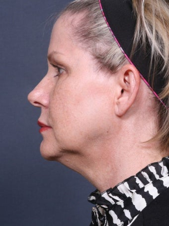 Neck Lift before 384956