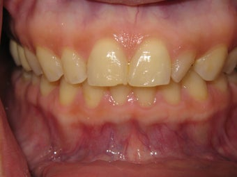 Veneers before 317141