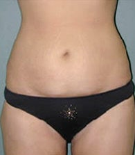 Liposuction after 479091