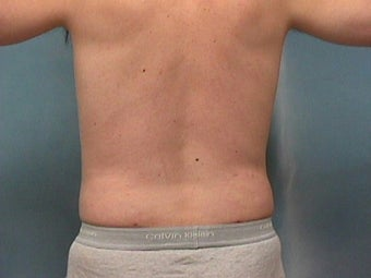 Liposuction after 140076