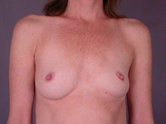 Breast Implants  before 305405