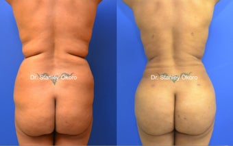 Brazilian Buttock Lift before 567099