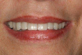 Dental implants, bone grafts, all porcelain crowns  after 503116