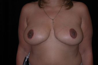 Breast reduction and lifting after 251923