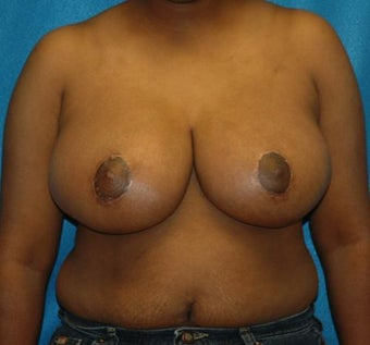 FEMMA-S Breast reduction and lift after 393388