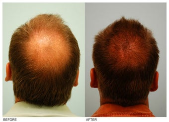Crown (Vertex) Hair Transplant before 134773