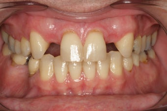 Whitening and Implants before 213055