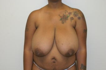 Breast reduction before 365714