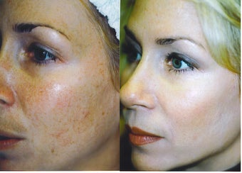 Intense Pulsed Light Treatment before 248995
