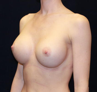 Breast Augmentation after 477418