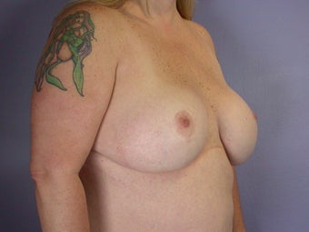 Breast Lift / Breast Augmentation after 291097