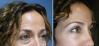 Cosmetic eyelid surgery before 127642