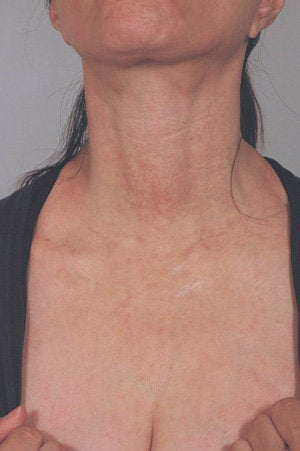 Laser treatment for neck and chest sun damage after 199408