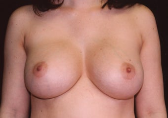 Breast augmentation after 401089