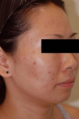 Laser Acne Treatment after 82971