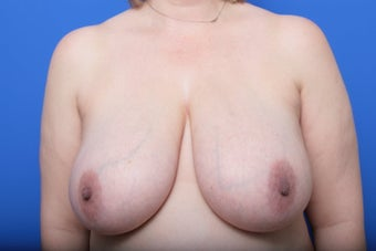 Breast Reduction before 621923