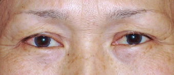 Upper Blepharoplasty before 365451